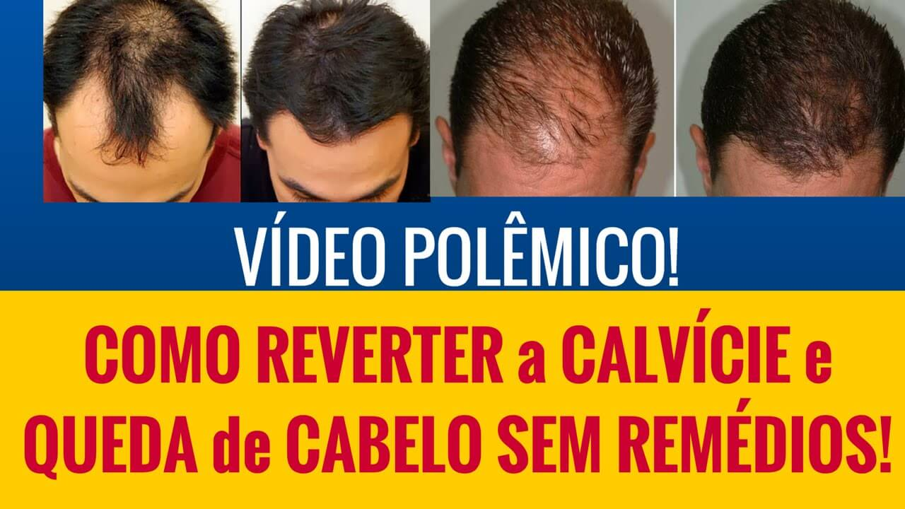 vencendo-a-calvicie-video-polemico